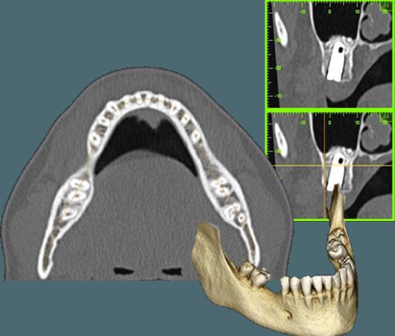 OS3D visualizzazione radiologica